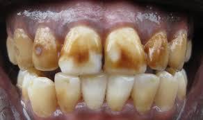 E11 dENTAL fLUOROSIS (4)